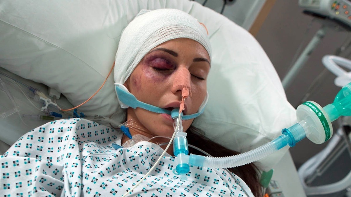 michelle keegan coronation street in coma