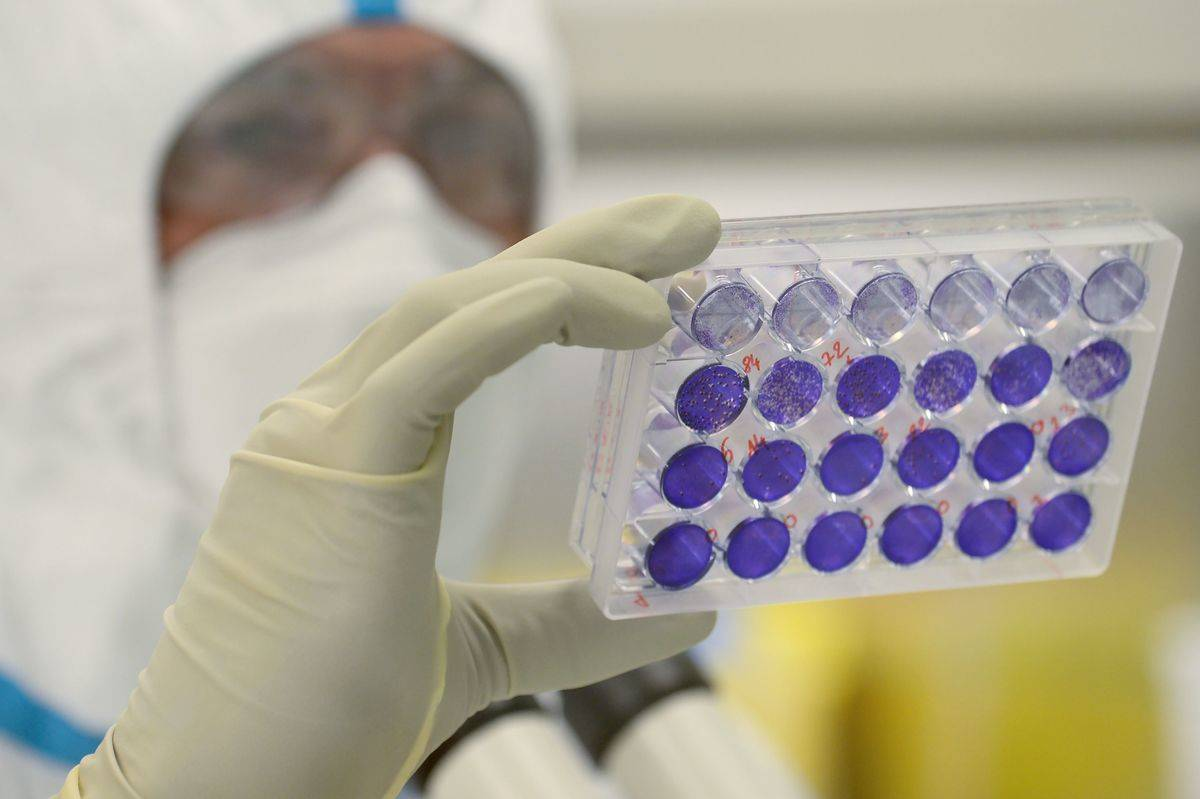 A laboratory engineer and virologist examines viral cells in a container.