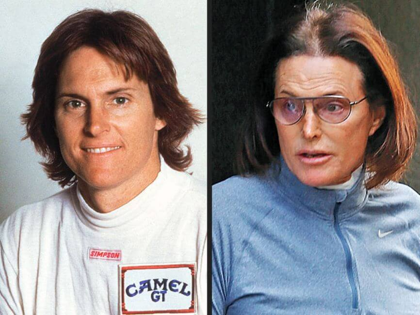 Caitlyn Jenner: From Bruce to Caitlyn