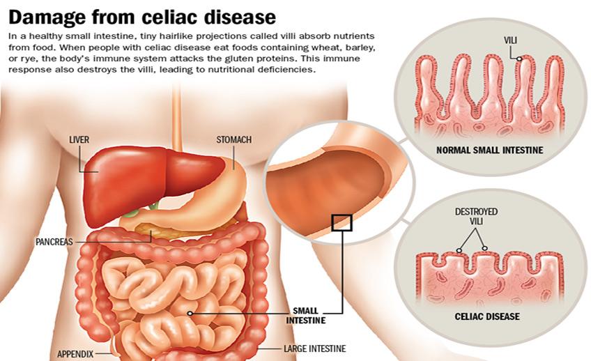 Celiac Means Abdominal Pain