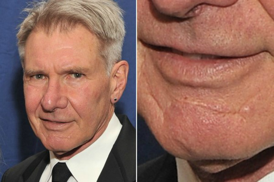 The Scars of Harrison Ford