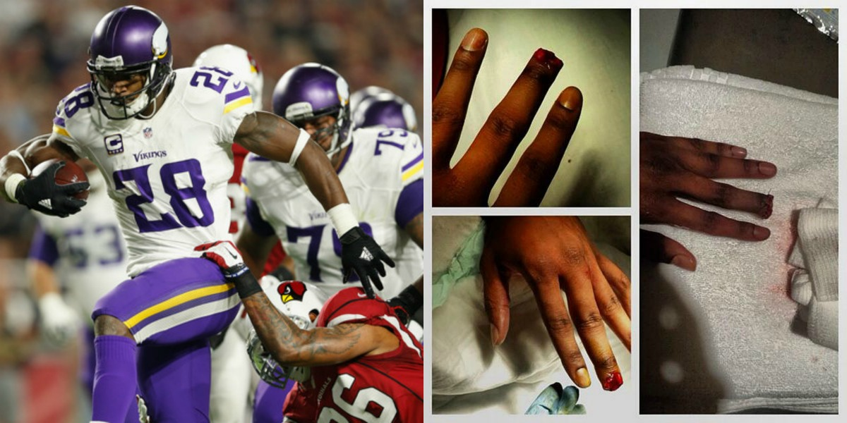 Rashad Johnson's Finger…