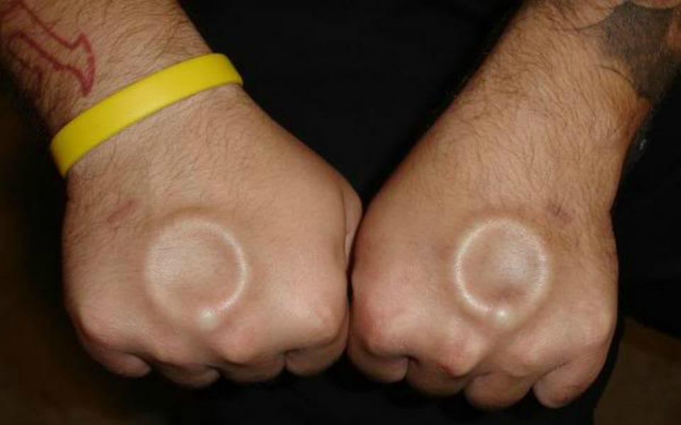 Subdermal Implants