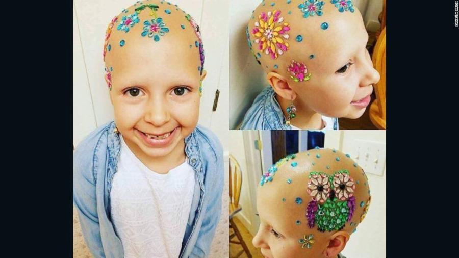 002-170407151105-alopecia-utah-girl-super-te.jpg