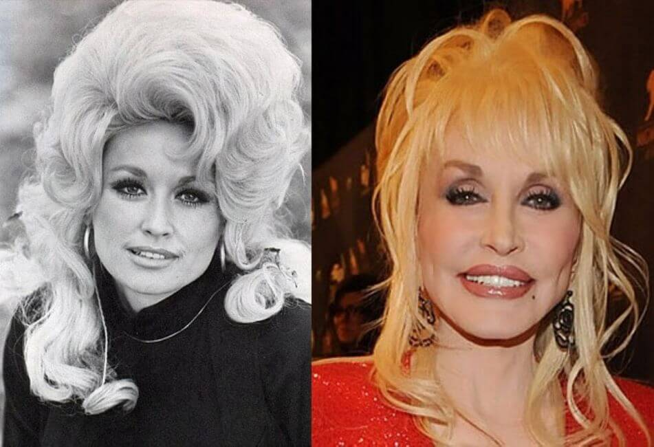 Dolly Parton – Then and Now